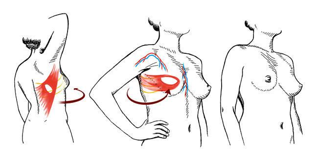 背阔肌皮瓣转移至胸前重建
